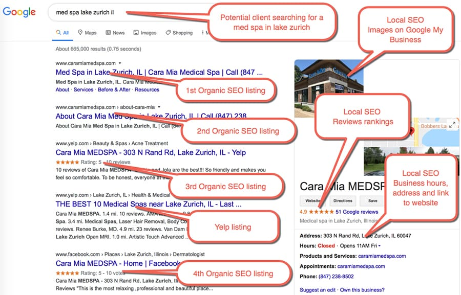 """Local Medspa SEO Example 2 :  Potential client Searching for """"med spa lake zurich il"""""""