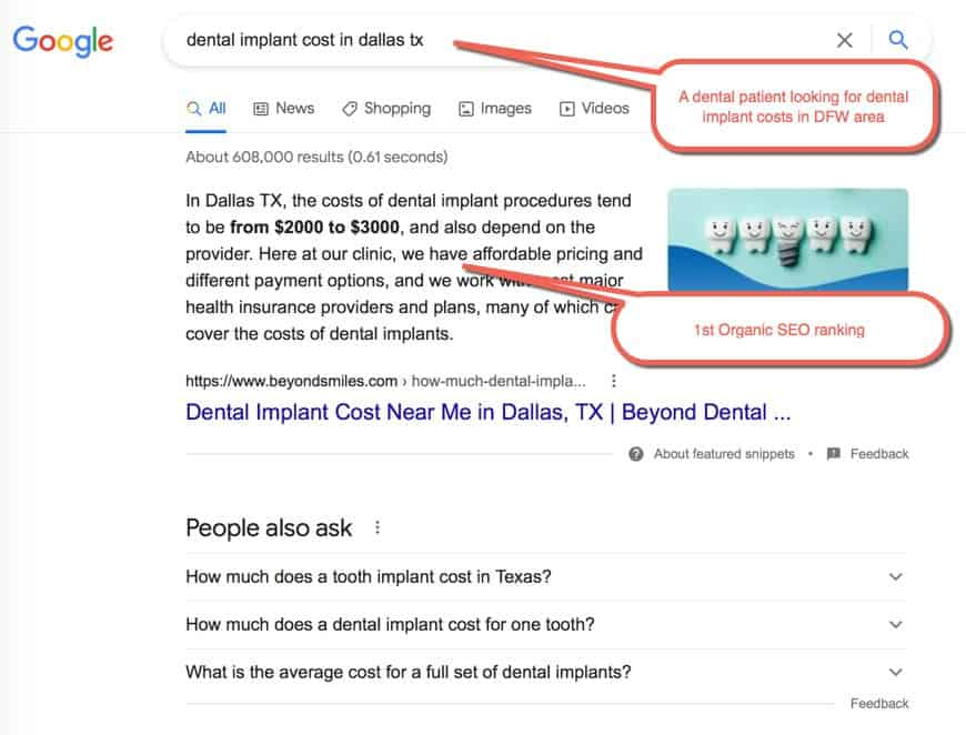 Example of a Dental SEO of Google search.